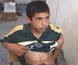 Mustapha, 12, lives in the railway station. On April28, 2005 shot by an American