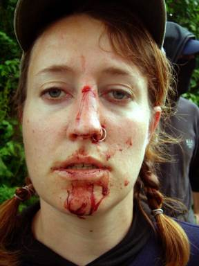 Picture of sab with nose broken by hunt thugs
